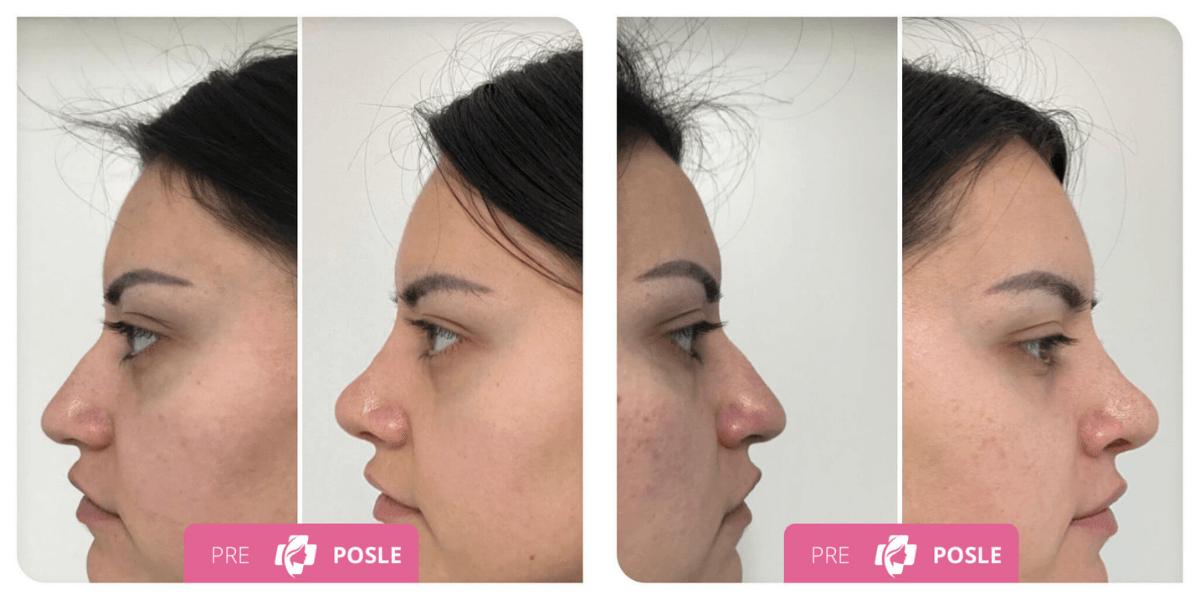 estetska operacija nosa pre i posle