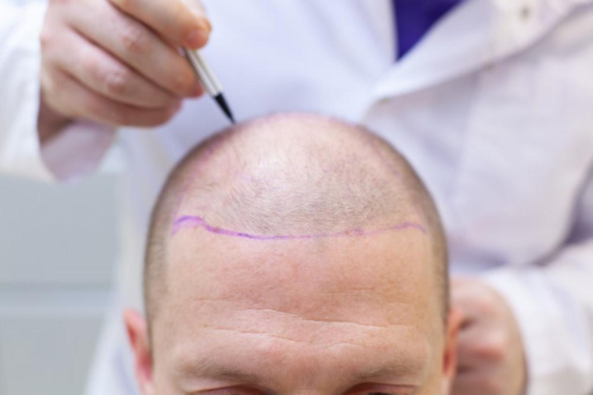 transplantacija kose rea medika