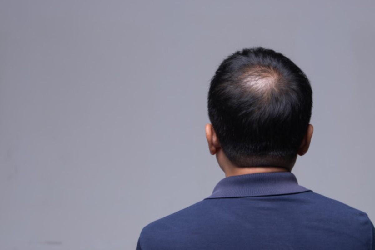 transplantacija kose beograd
