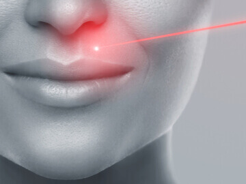 laserska epilacija na licu