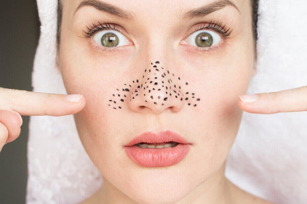 HydraFacial tretmani: Zašto je licu potrebno dubinsko čišćenje?