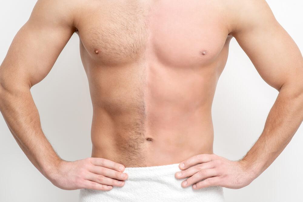 laserska epilacija za muškarce