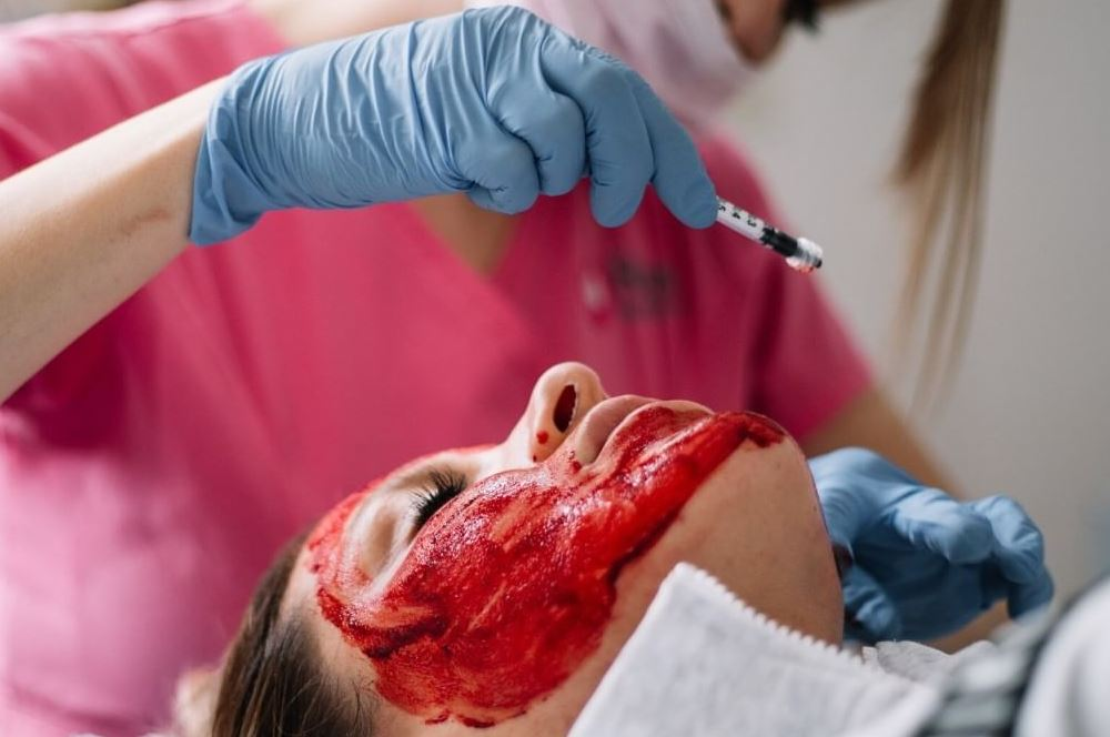 prp tretman lica